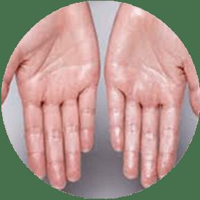 Hyperhidrosis